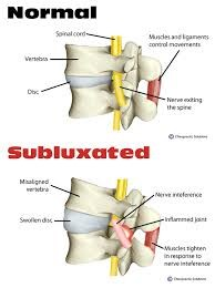 normal vs subluxation